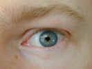 eye2309.jpg (727213 bytes)
