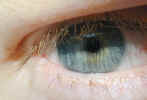 eye2312.jpg (393472 bytes)