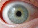 eye2316.jpg (450041 bytes)